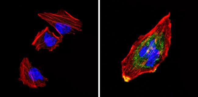Chromogranin A Antibody in Immunofluorescence (IF)