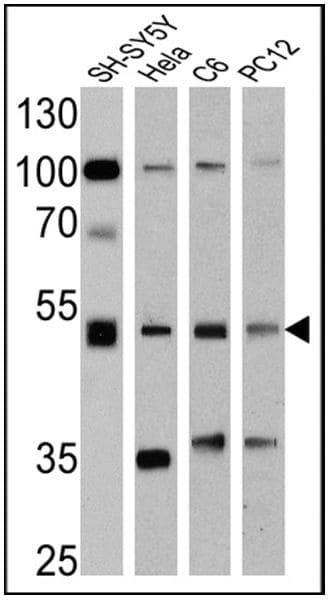 Chromogranin A Antibody in Western Blot (WB)