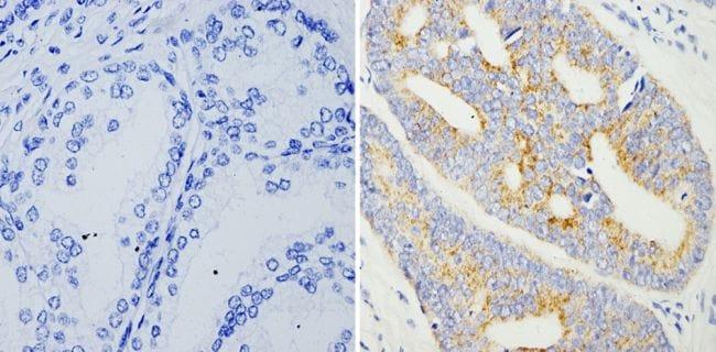 AMACR Antibody in Immunohistochemistry (Paraffin) (IHC (P))