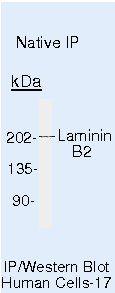 Laminin beta-2/gamma-1 Antibody in Immunoprecipitation (IP)