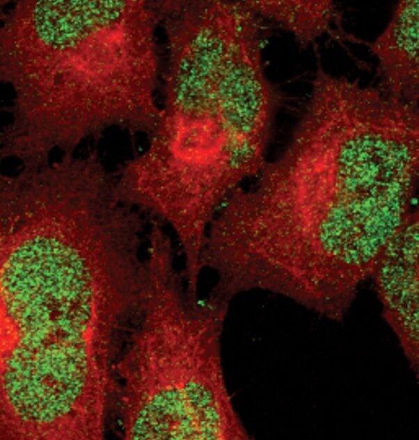 Phospho-STAT5 alpha (Tyr694) Antibody in Immunofluorescence (IF)
