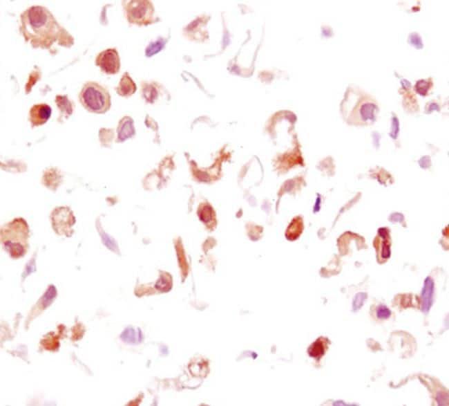 Phospho-GSK3B (Ser9) Antibody in Immunohistochemistry (IHC)