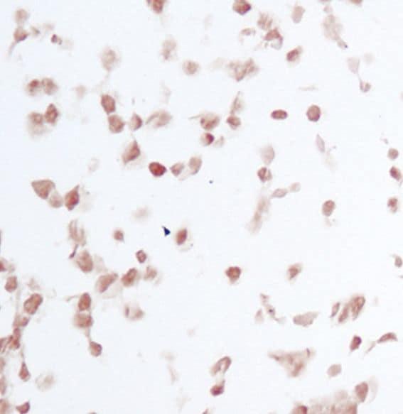 Phospho-JNK1/JNK2 (Thr183, Tyr185) Antibody in Immunohistochemistry (IHC)