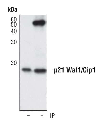 p21 Antibody in Immunoprecipitation (IP)