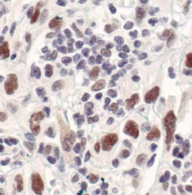 Survivin Antibody in Immunohistochemistry (IHC)