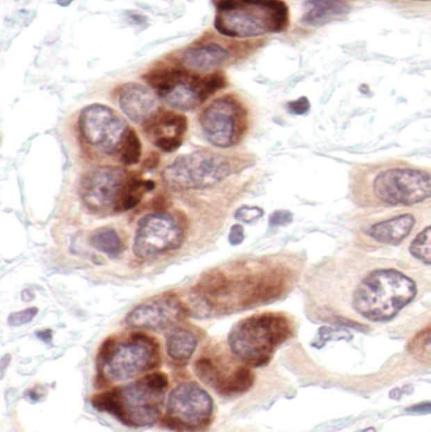 IkB alpha Antibody in Immunohistochemistry (IHC)