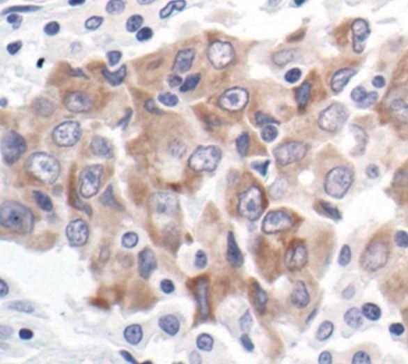 Bcl-xL Antibody in Immunohistochemistry (IHC)