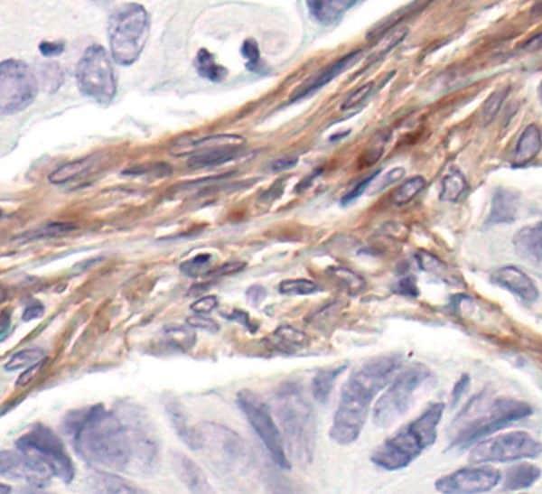 PDGFRB Antibody in Immunohistochemistry (IHC)