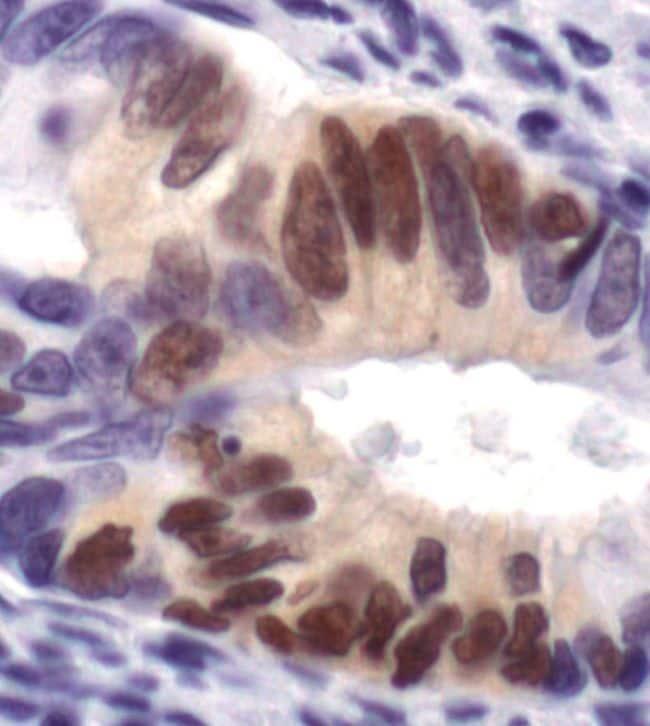 Phospho-ERK1/ERK2 (Thr202, Tyr204) Antibody in Immunohistochemistry (IHC)