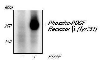 Phospho-PDGFRB (Tyr751) Antibody in Western Blot (WB)