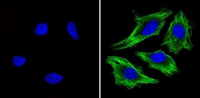 beta Tubulin Loading Control Antibody in Immunofluorescence (IF)