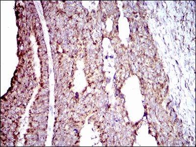 ALDH2 Antibody in Immunohistochemistry (Paraffin) (IHC (P))