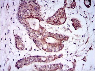 BMPR1A Antibody in Immunohistochemistry (Paraffin) (IHC (P))