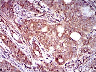 Dynactin 4 Antibody in Immunohistochemistry (Paraffin) (IHC (P))