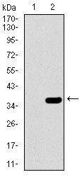 SLC27A5 Antibody in Western Blot (WB)