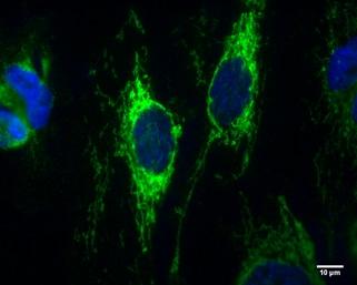IDH2 Antibody in Immunocytochemistry (ICC)