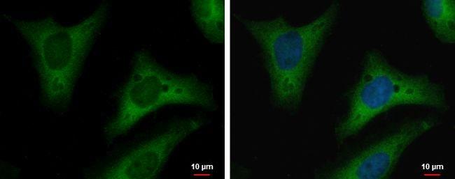 TPI1 Antibody in Immunocytochemistry (ICC/IF)