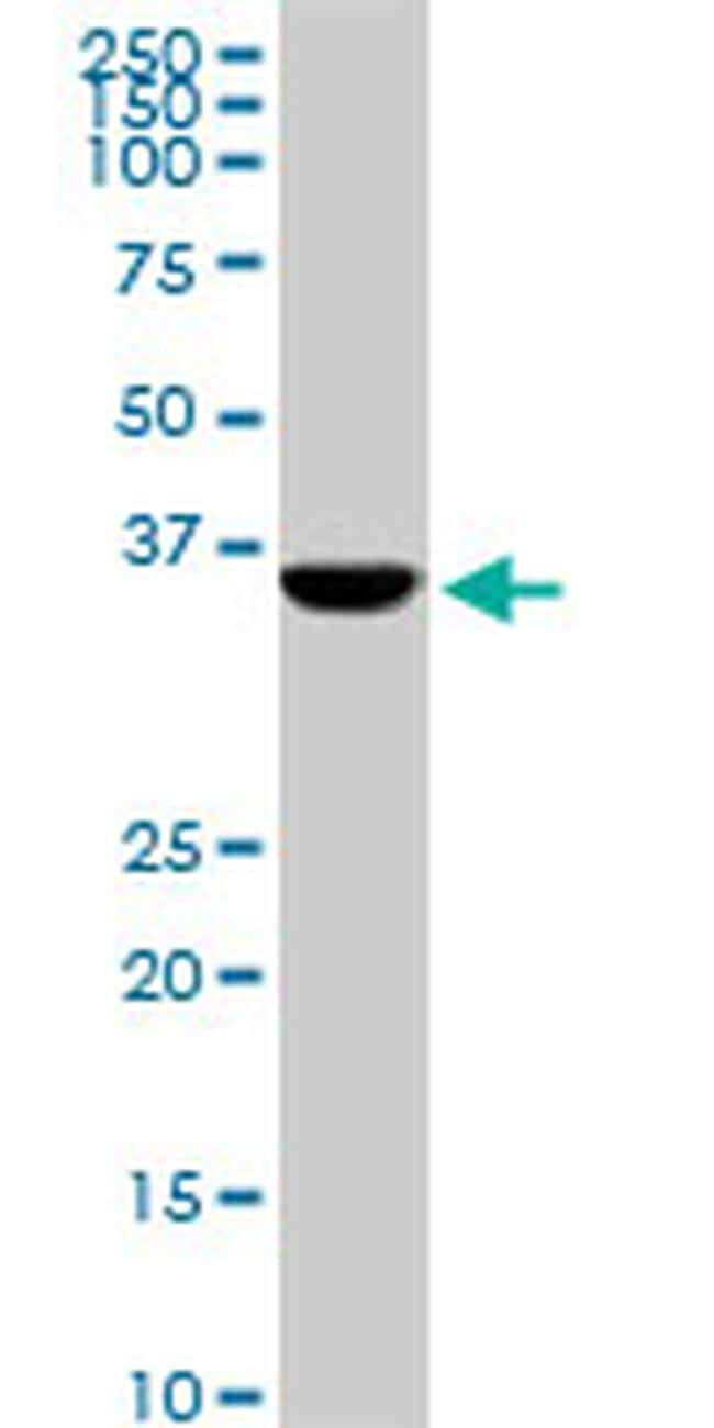 CDX4 Antibody in Western Blot (WB)