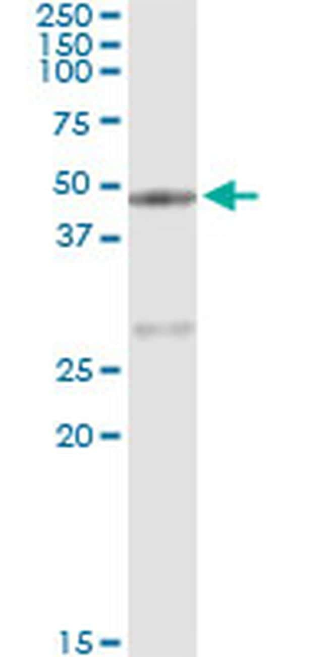 Carboxypeptidase A1 Antibody in Immunoprecipitation (IP)