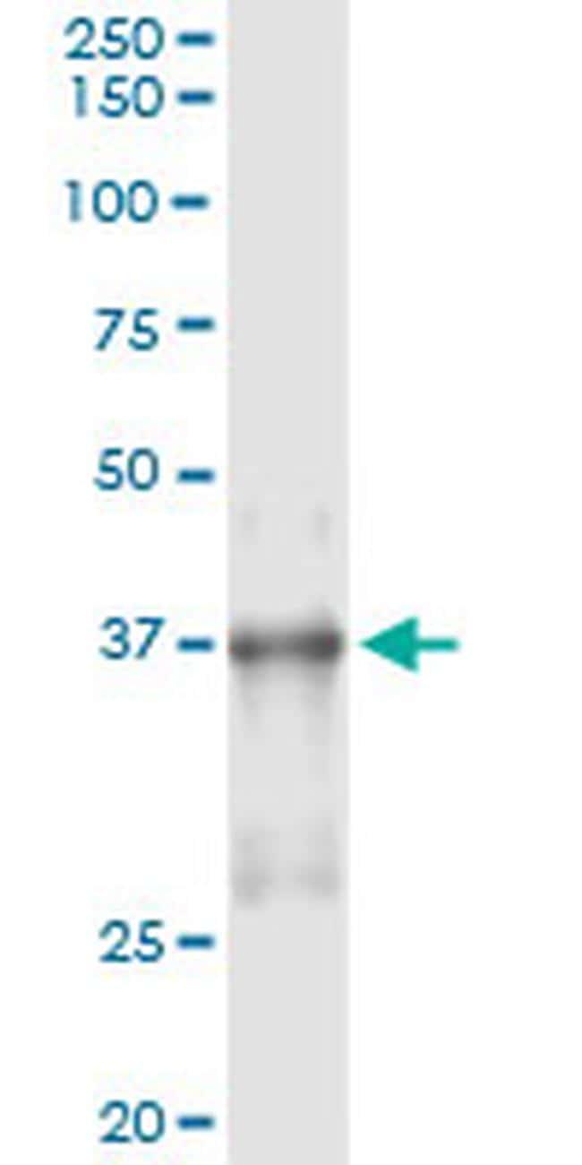 Nkx2.5 Antibody in Immunoprecipitation (IP)
