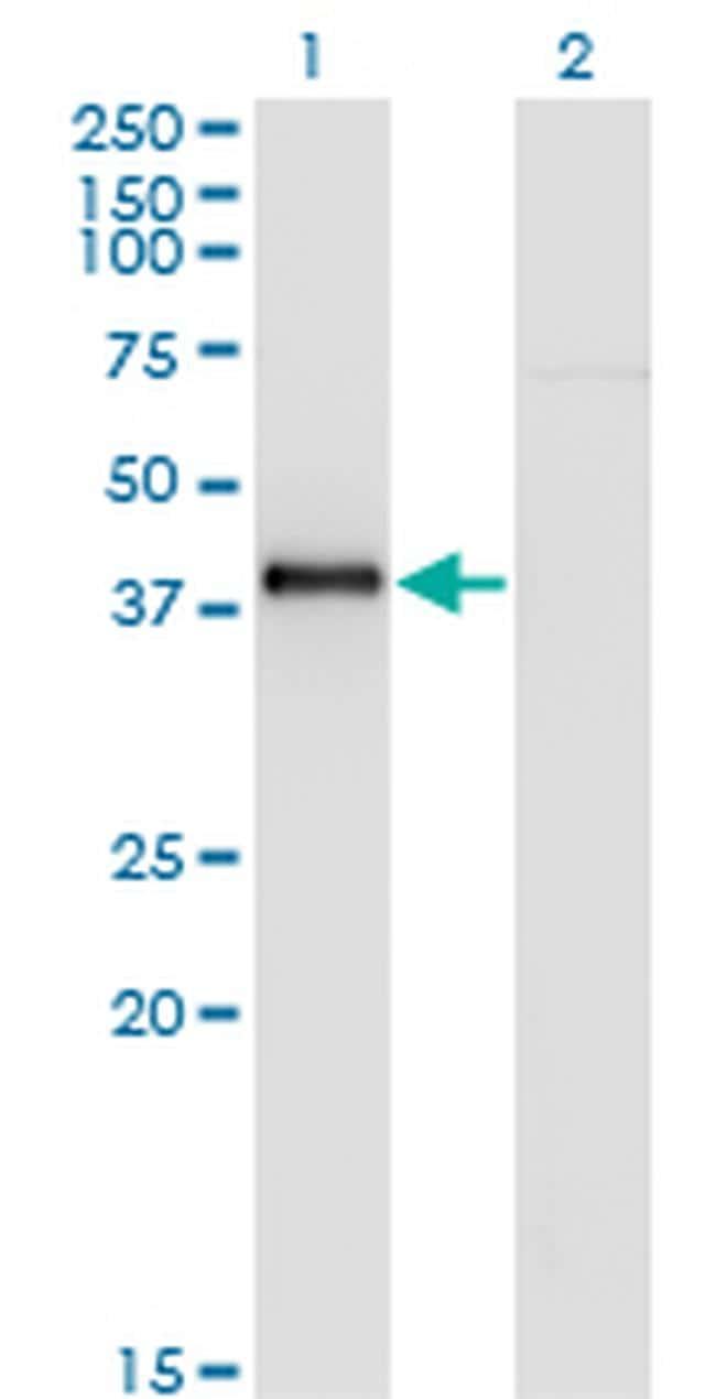 Nkx2.5 Antibody in Western Blot (WB)