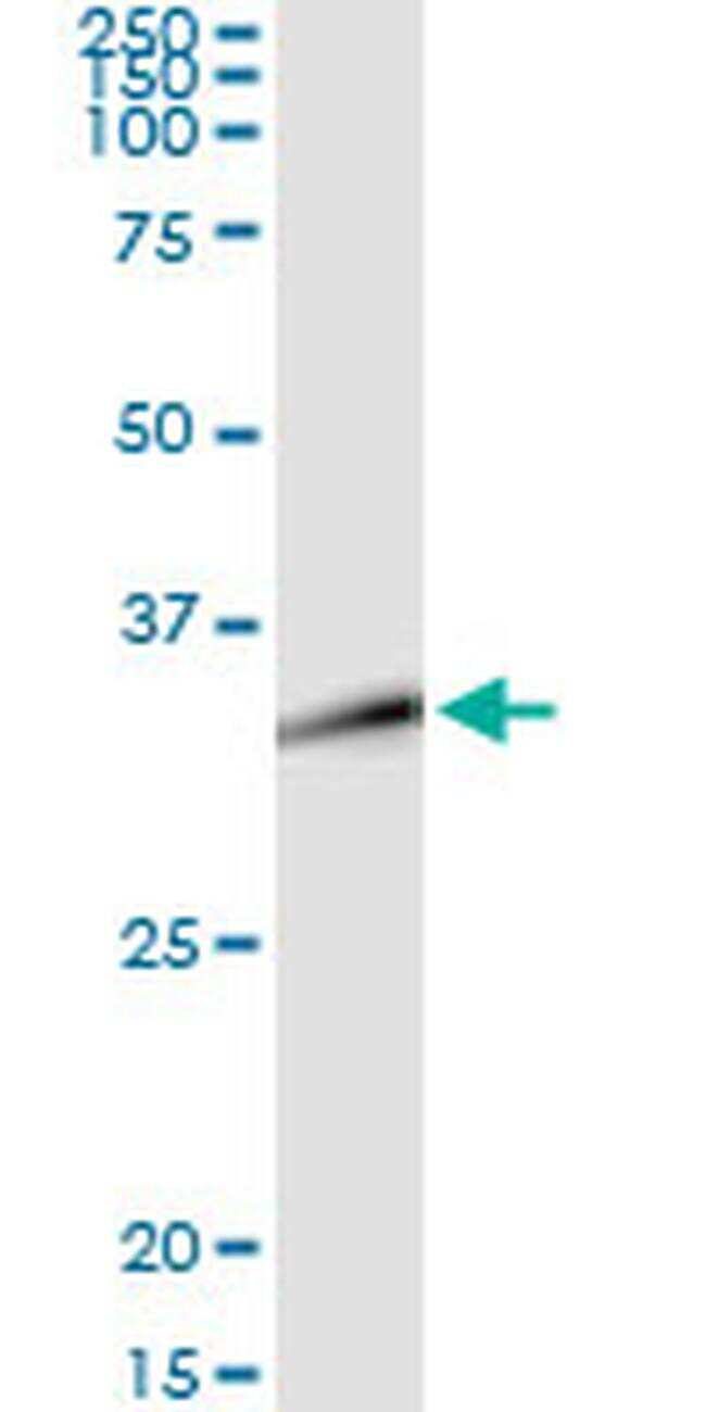 DLX1 Antibody in Immunoprecipitation (IP)