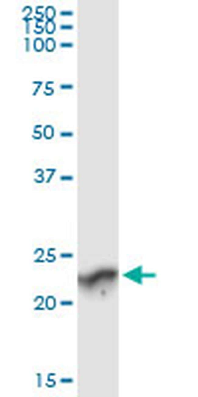 GUK1 Antibody in Immunoprecipitation (IP)