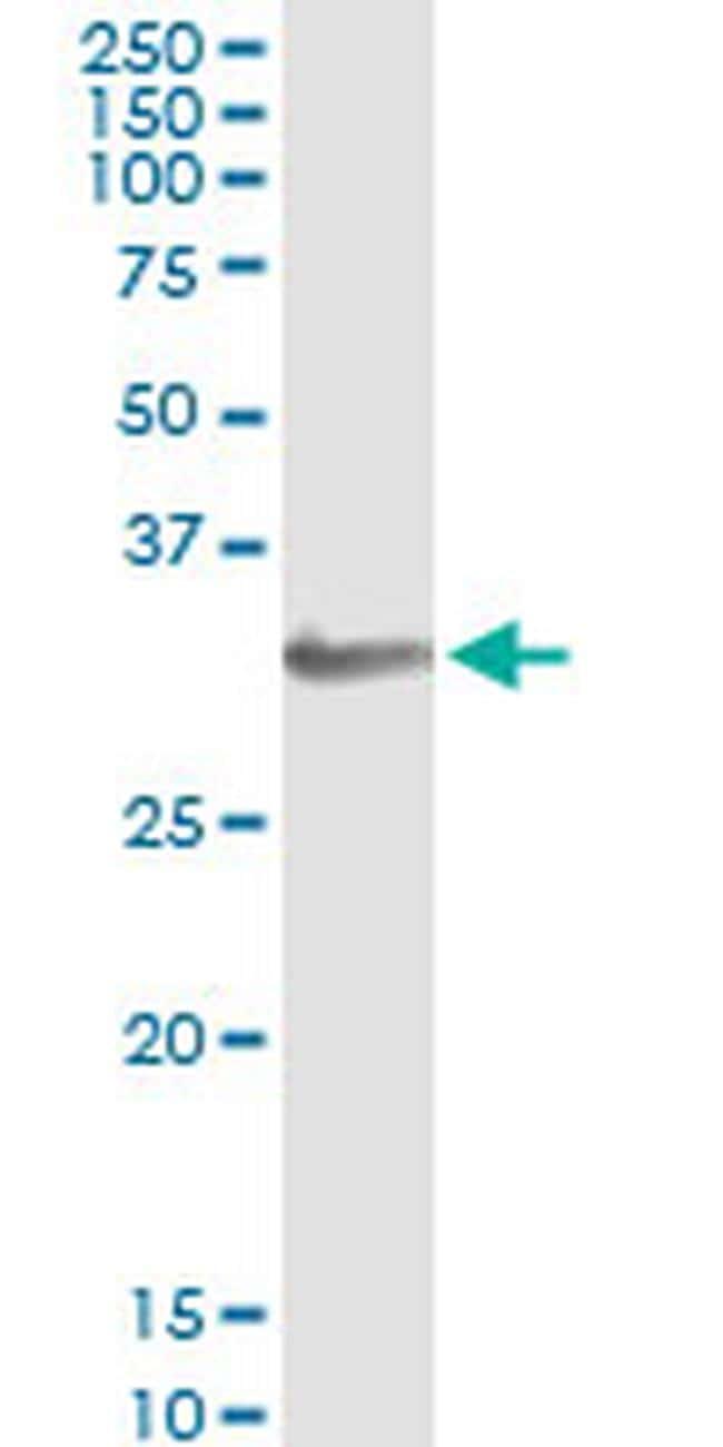 HOXA1/HOXB1/HOXD1 Antibody in Immunoprecipitation (IP)