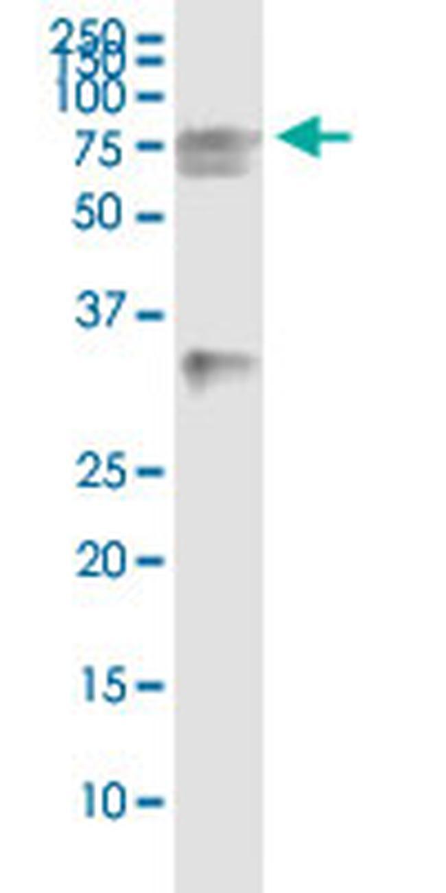 HSPA2 Antibody in Immunoprecipitation (IP)