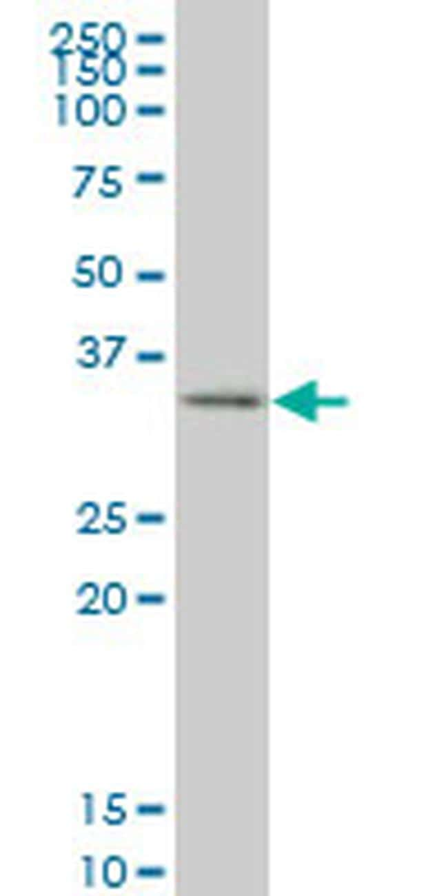SIX3 Antibody in Western Blot (WB)