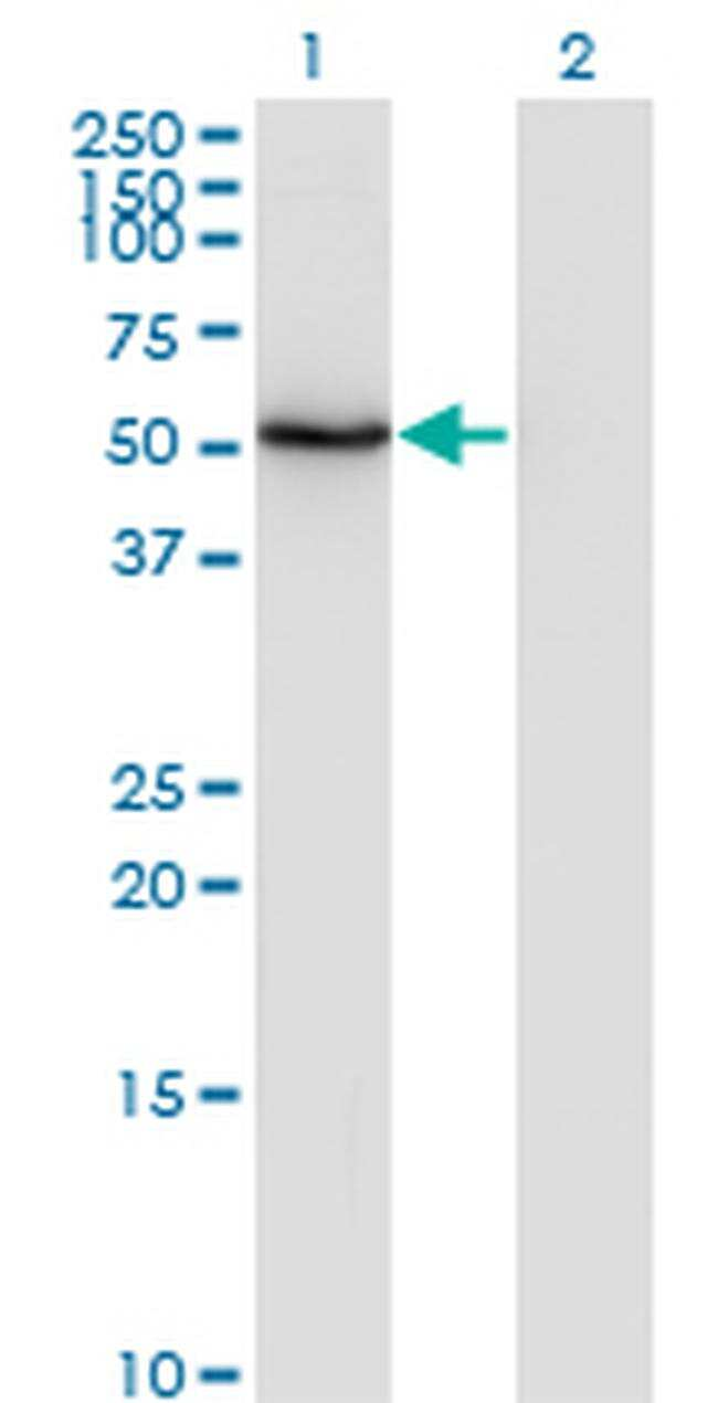 ZNF38 Antibody in Western Blot (WB)