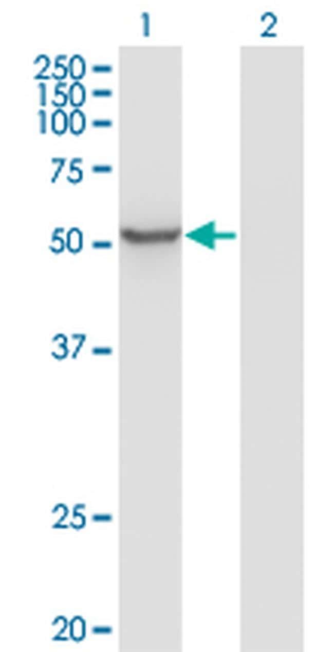 ZNF70 Antibody in Western Blot (WB)