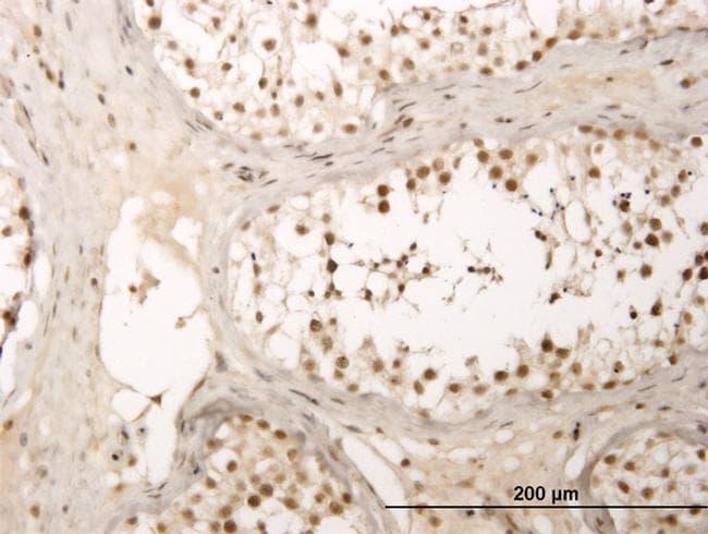 ZNF213 Antibody in Immunohistochemistry (PFA fixed) (IHC (PFA))