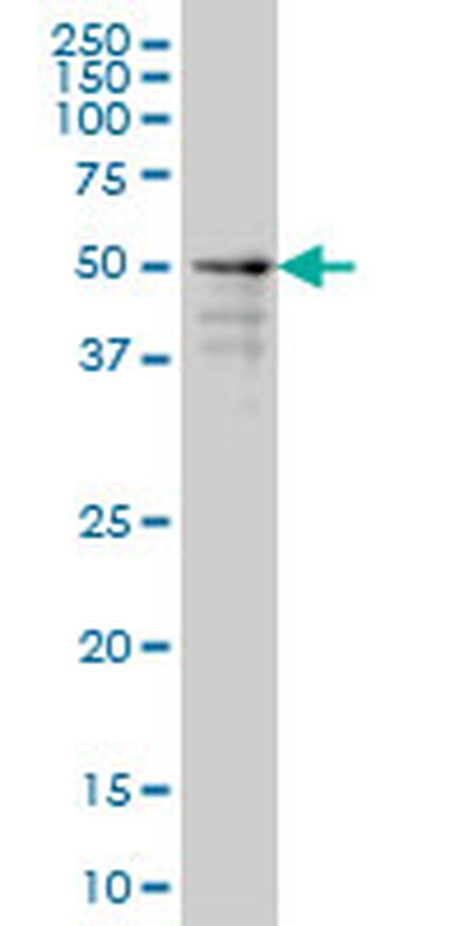ZNF213 Antibody in Western Blot (WB)