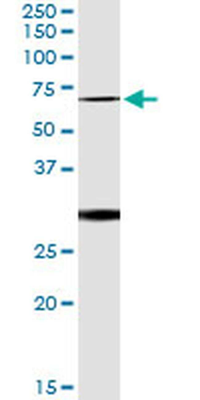 OXSR1 Antibody in Immunoprecipitation (IP)