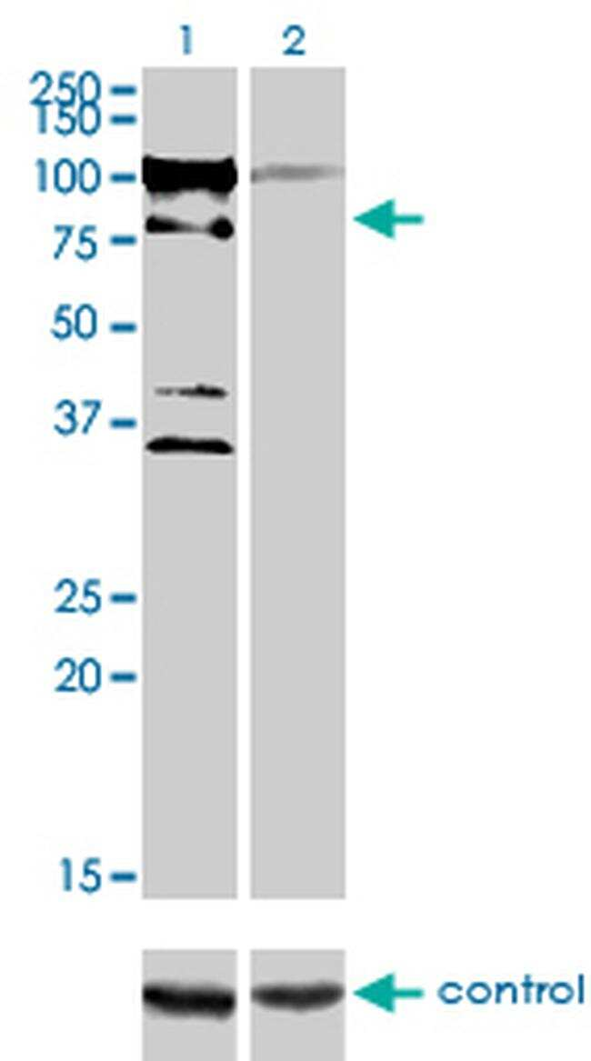 ZNF274 Antibody in Western Blot (WB)