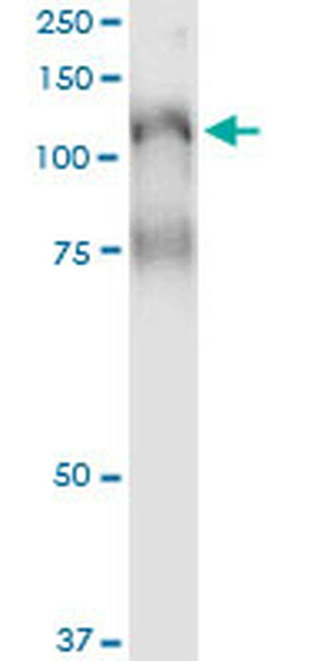 PLCL2 Antibody in Immunoprecipitation (IP)