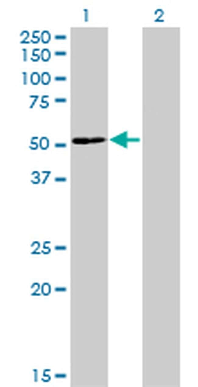 ZNF323 Antibody in Western Blot (WB)