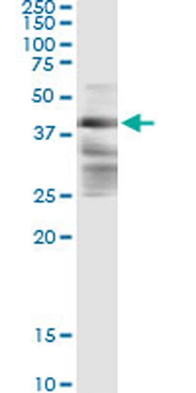 ZFYVE19 Antibody in Immunoprecipitation (IP)
