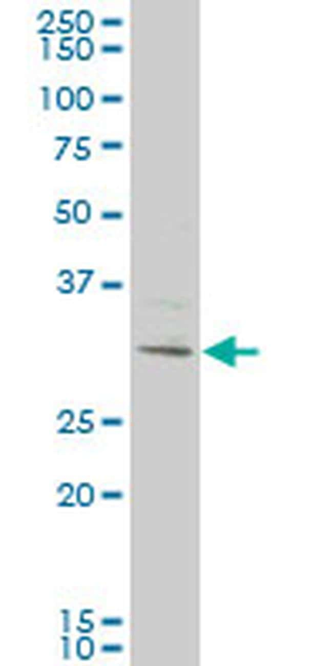 KCTD4 Antibody in Western Blot (WB)