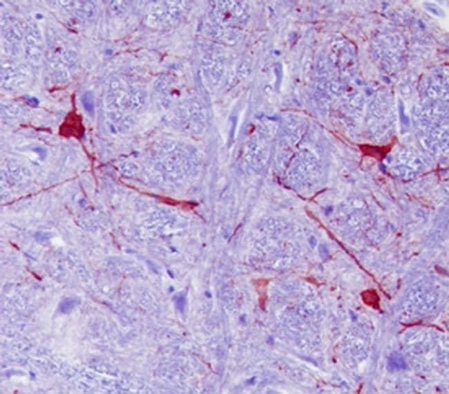 Calbindin D28K Antibody in Immunohistochemistry (Paraffin) (IHC (P))
