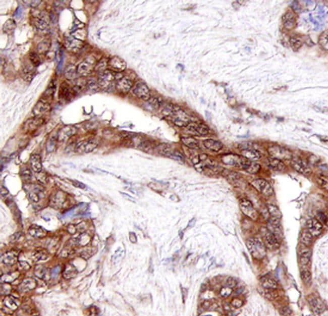 COL23A1 Antibody in Immunohistochemistry (Paraffin) (IHC (P))