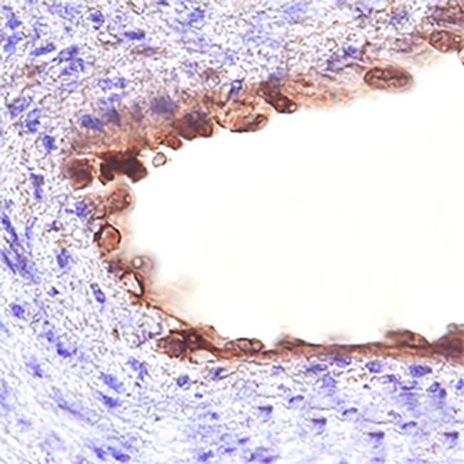 CD109 Antibody in Immunohistochemistry (Paraffin) (IHC (P))