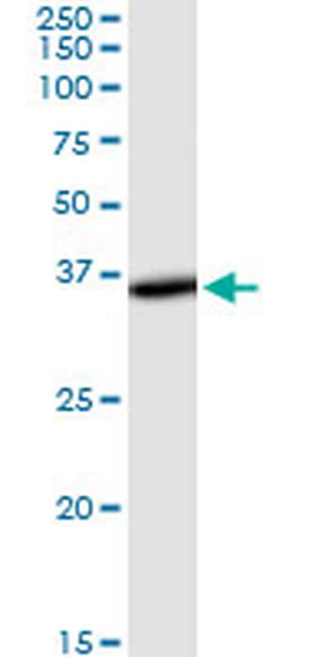 THUMPD1 Antibody in Western Blot (WB)