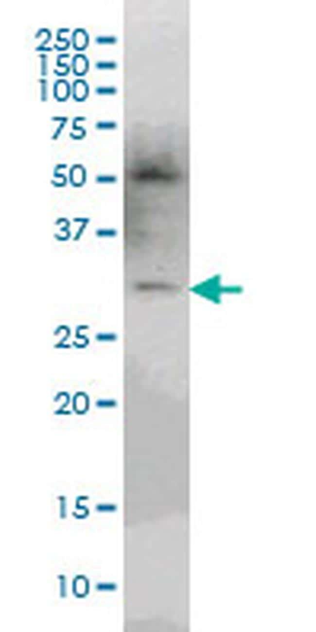PLEKHO2 Antibody in Western Blot (WB)