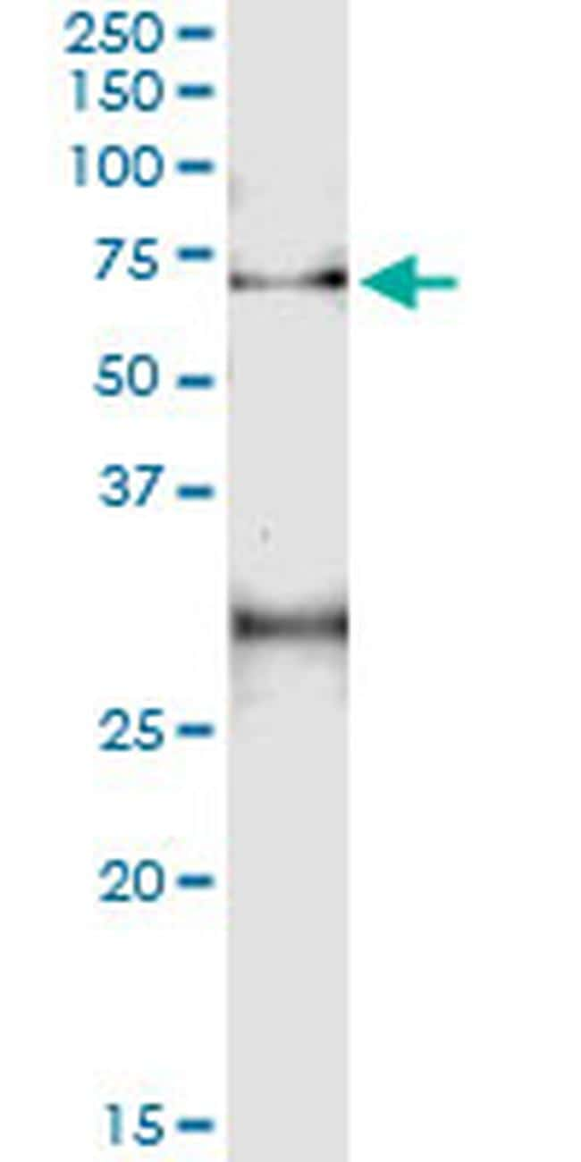ACD Antibody in Immunoprecipitation (IP)