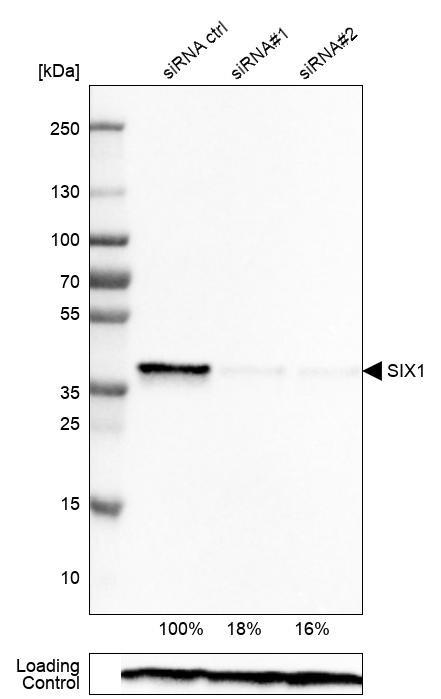 SIX1 Antibody in Knockdown