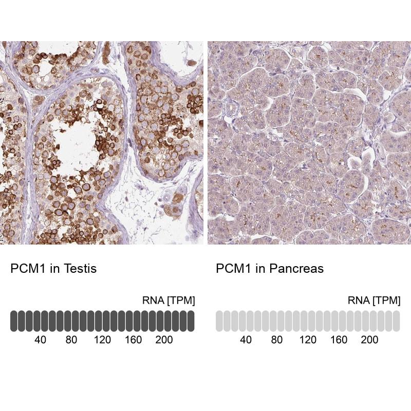 PCM1 Antibody in Immunohistochemistry (IHC)