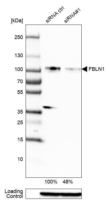 Fibulin 1 Antibody in Knockdown