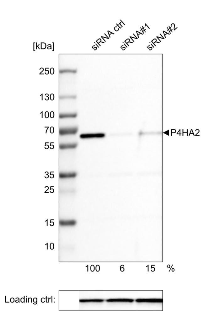 P4HA2 Antibody in Western Blot (WB)